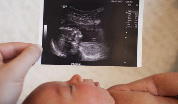 سونوگزافی نوزاد چگونه است؟